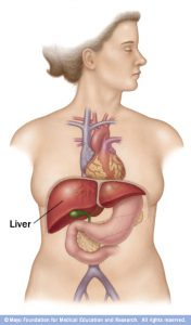 liver cancer - all you need to know - vezeeta, Sphenoid