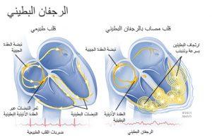 تخطيط القلب الكهربي